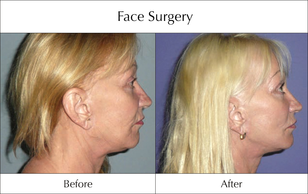 face-surgery-before-and-after-6