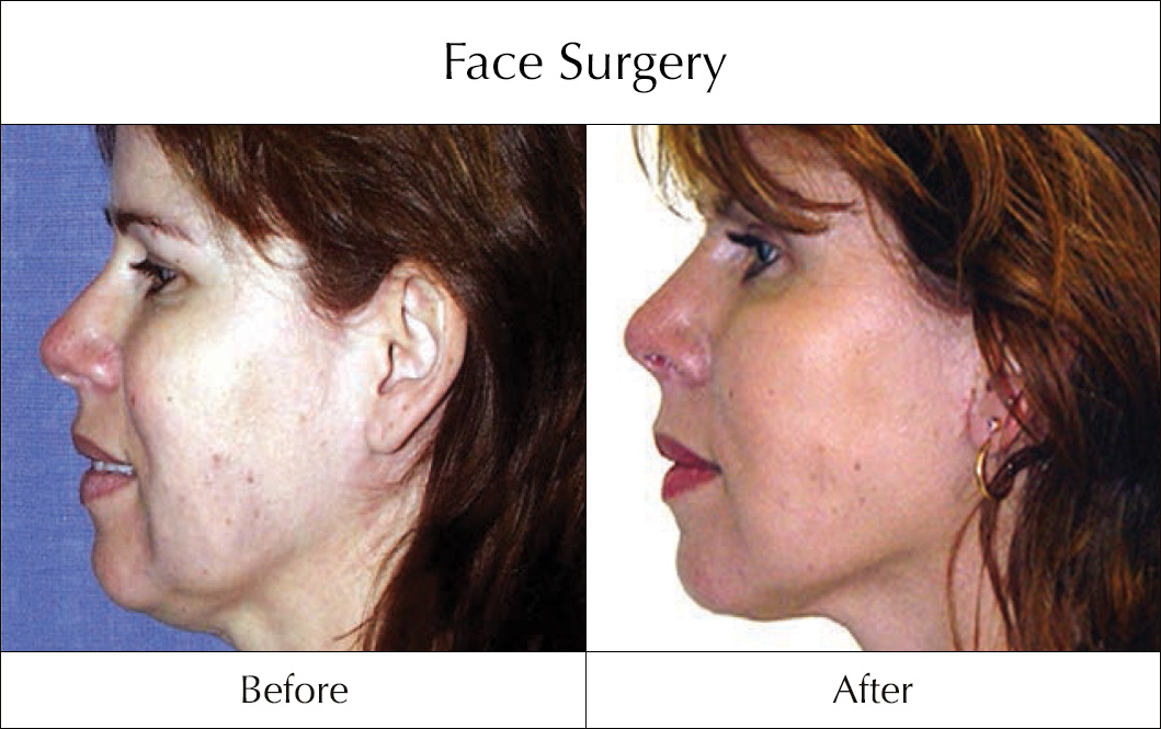 face-surgery-before-and-after-7