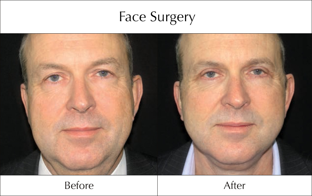 face-surgery-before-and-after-8