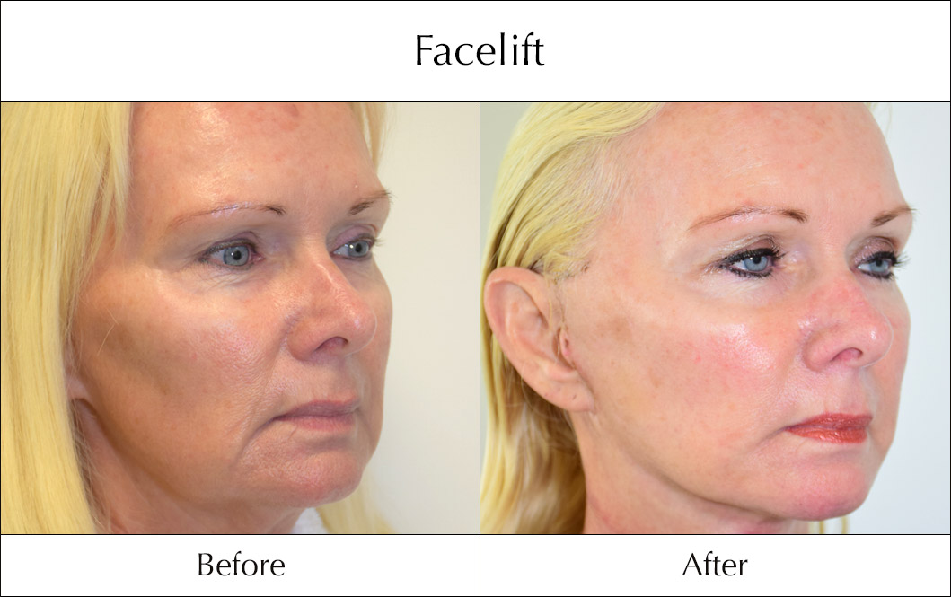 facelift-before-and-after-1