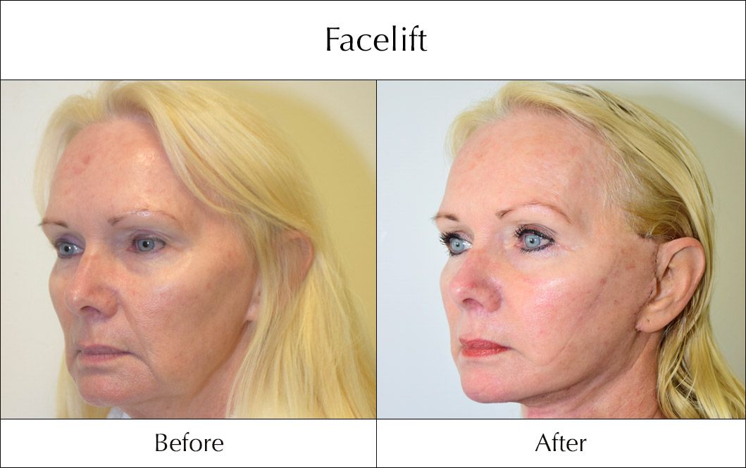 facelift-before-and-after-2