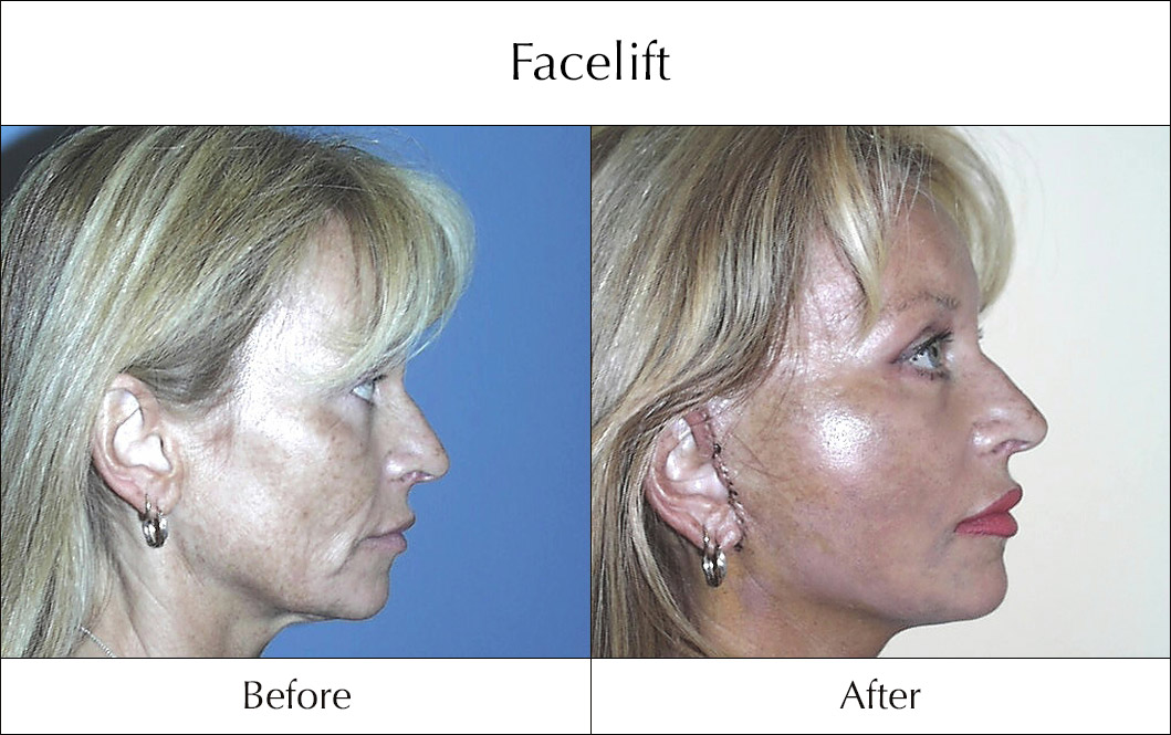 facelift-before-and-after-6