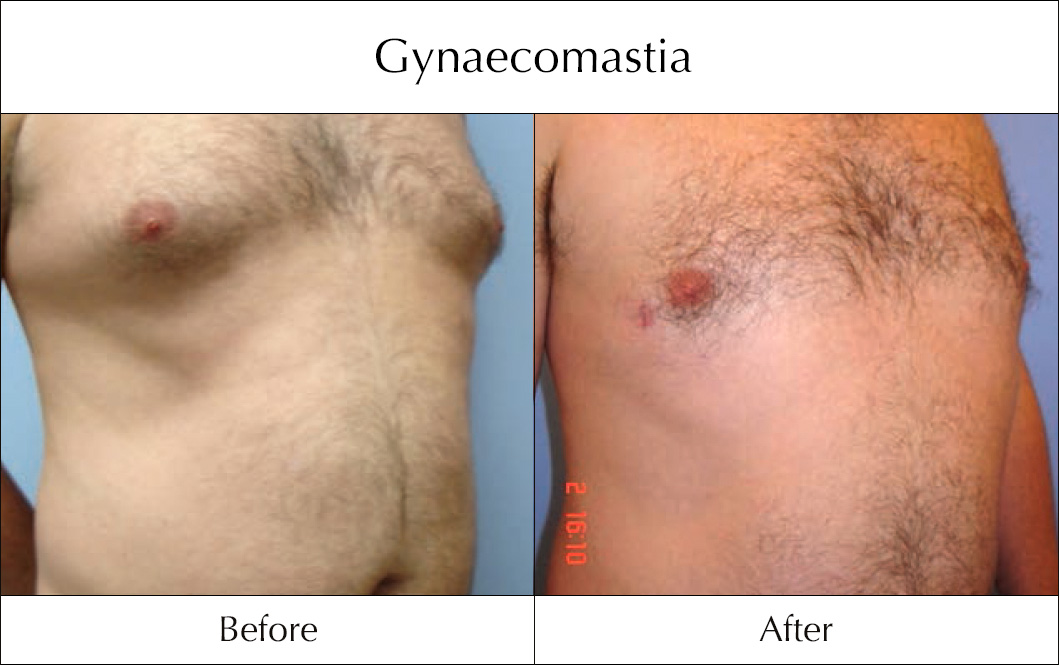 gynaecomastia-before-and-after-1