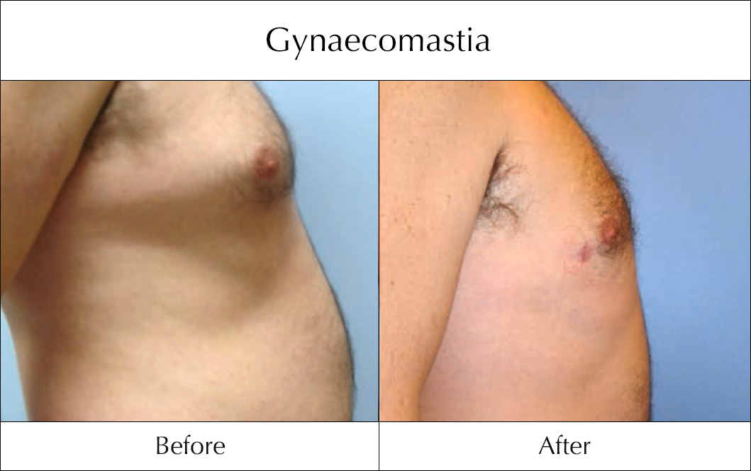 gynaecomastia-before-and-after-2