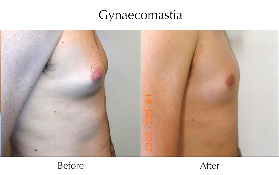 gynaecomastia-before-and-after-3