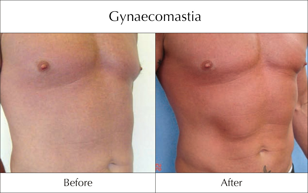 gynaecomastia-before-and-after-4