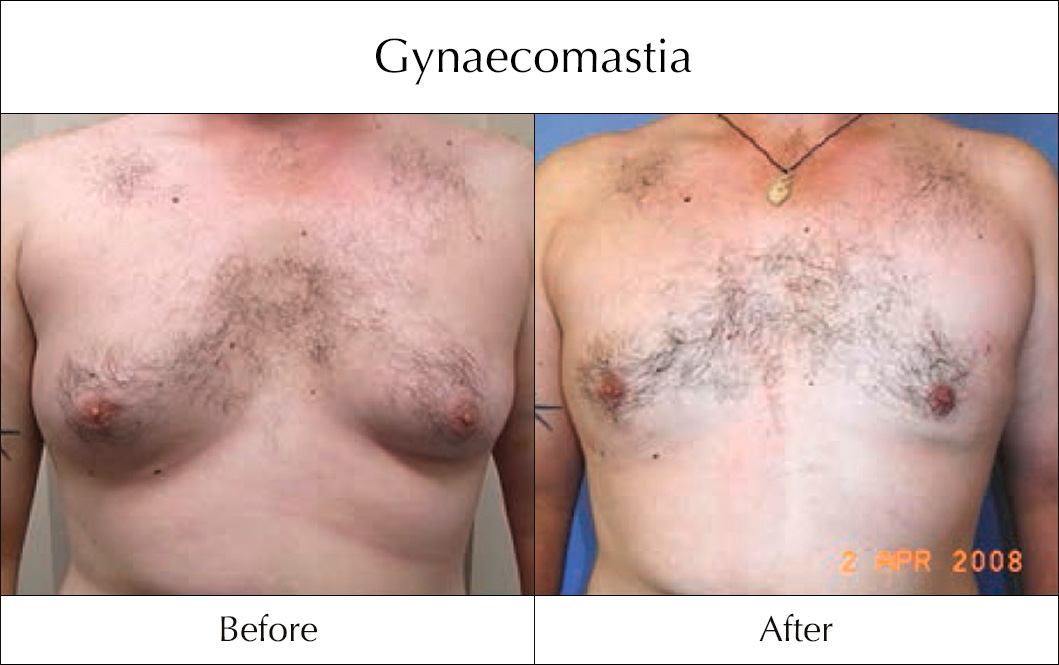 gynaecomastia-before-and-after-6