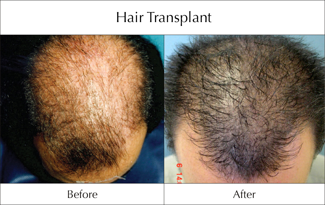 hair-transplant-before-and-after-1