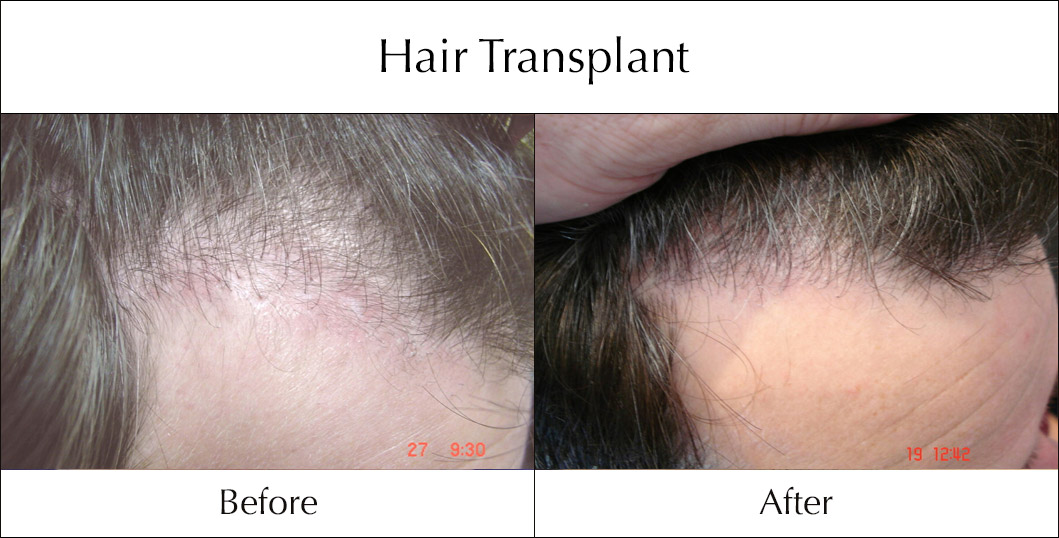 hair-transplant-before-and-after-4