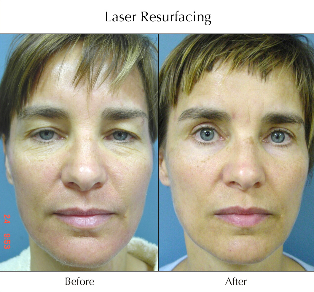 laser-resurfacing-before-and-after-1