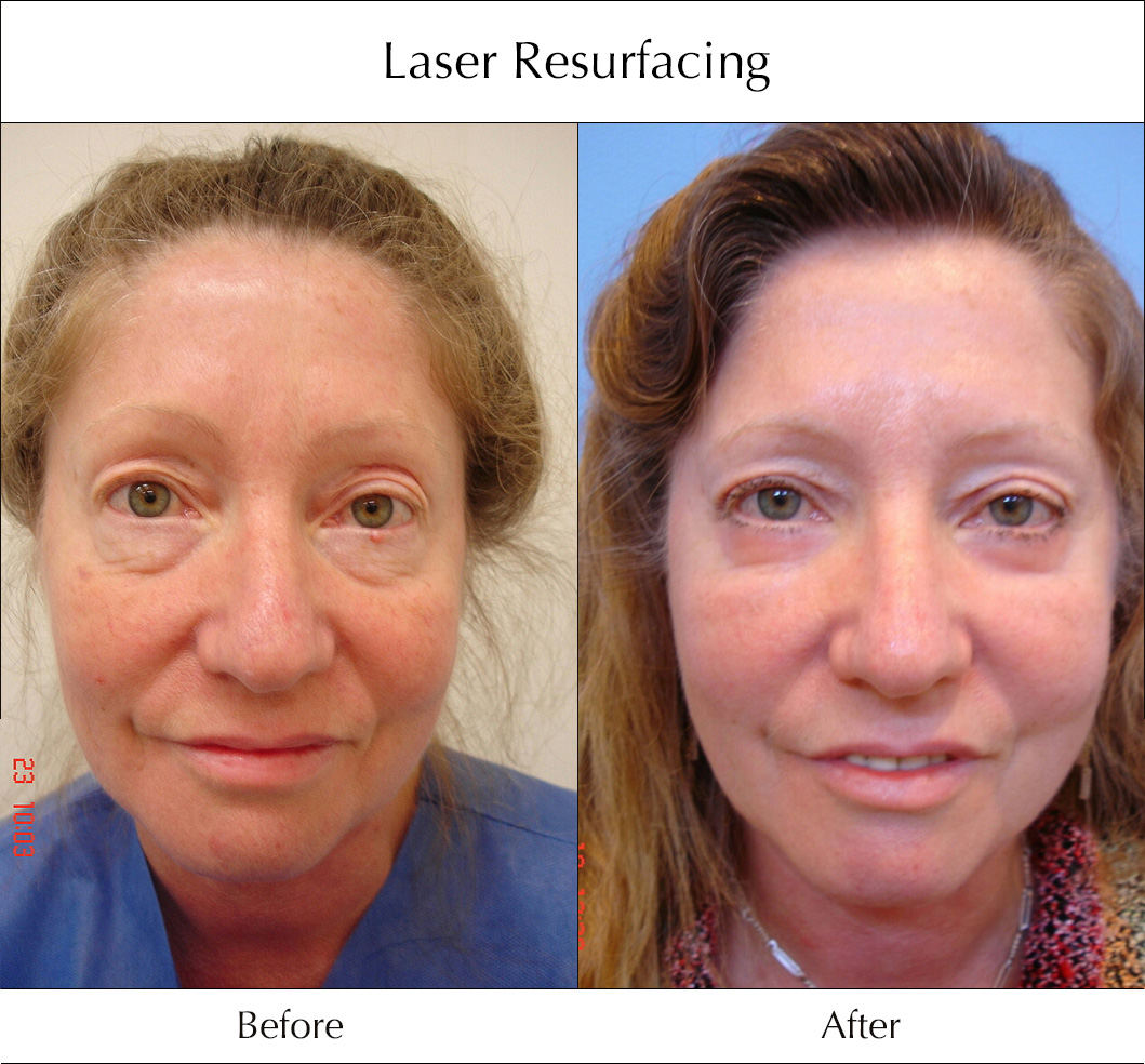 laser-resurfacing-before-and-after-2