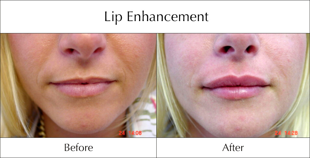 Natural male enhancement before and after