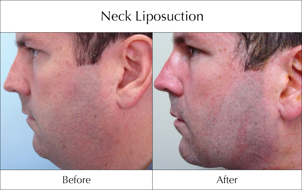 neck-liposuction-before-and-after-1