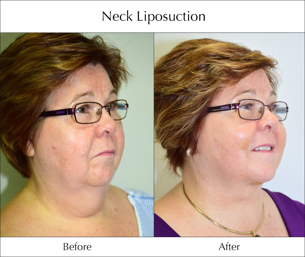 neck-liposuction-before-and-after-4