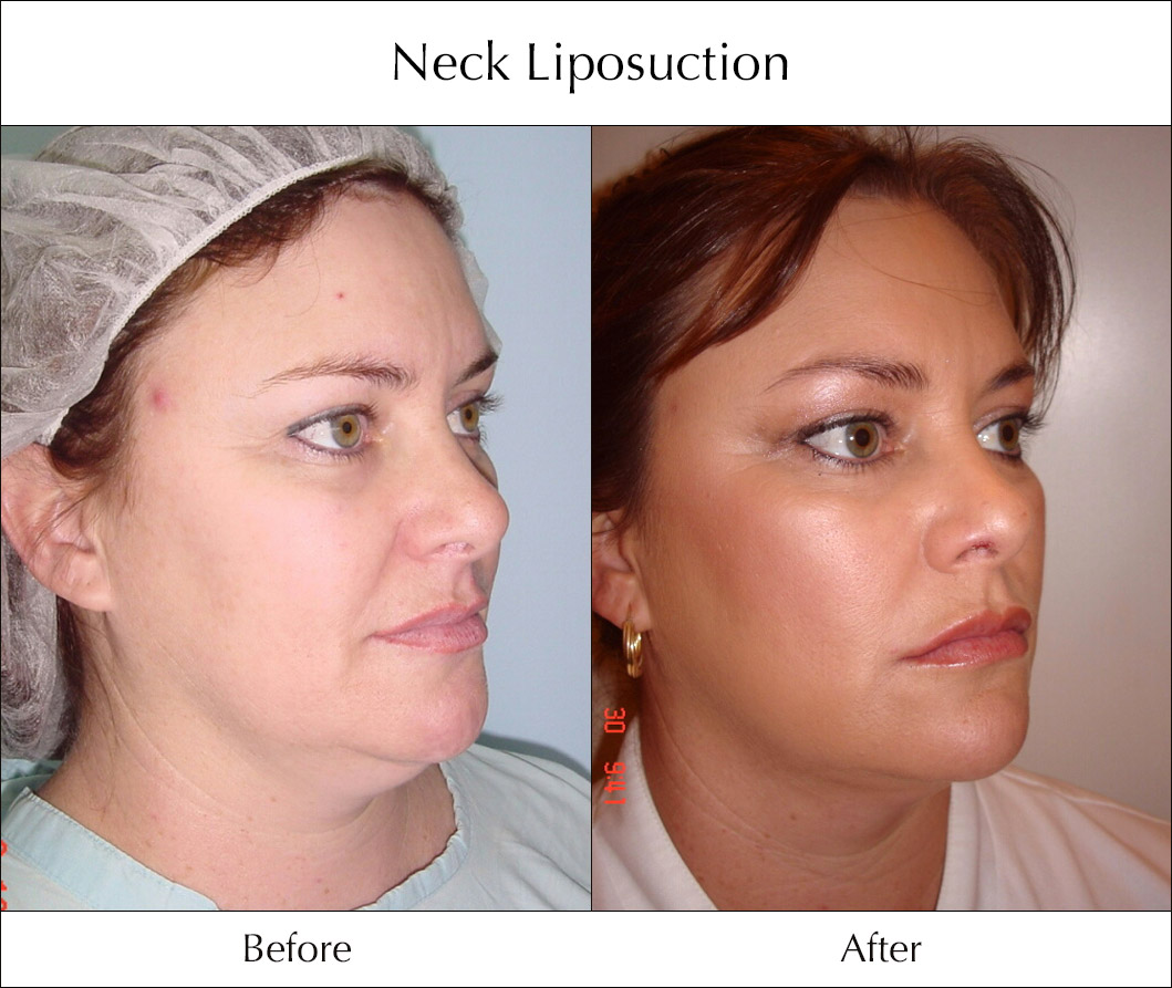 neck-liposuction-before-and-after-5