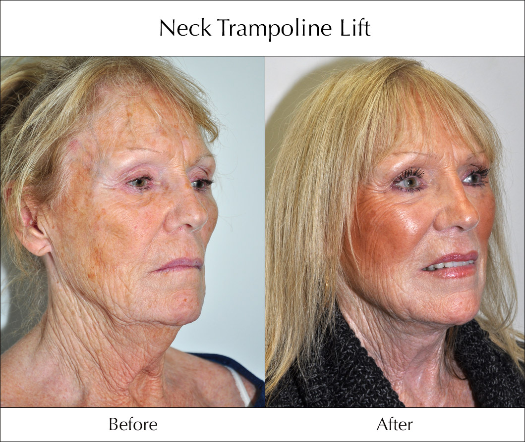 neck-trampoline-lift-before-and-after-1