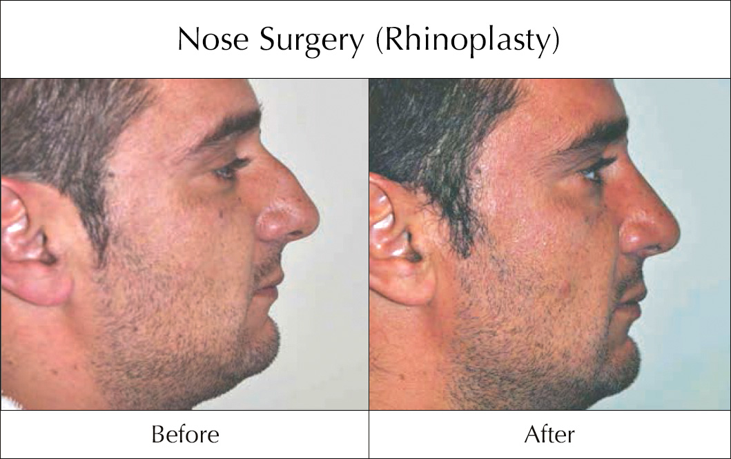 nose-surgery-rhinoplasty-before-and-after-1