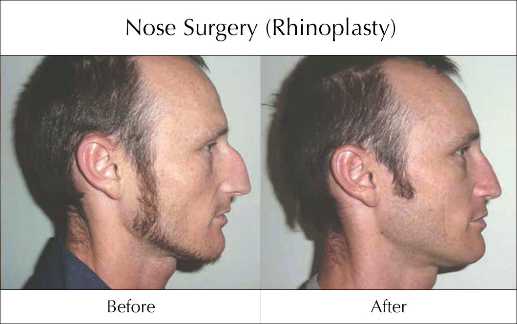 nose-surgery-rhinoplasty-before-and-after-3