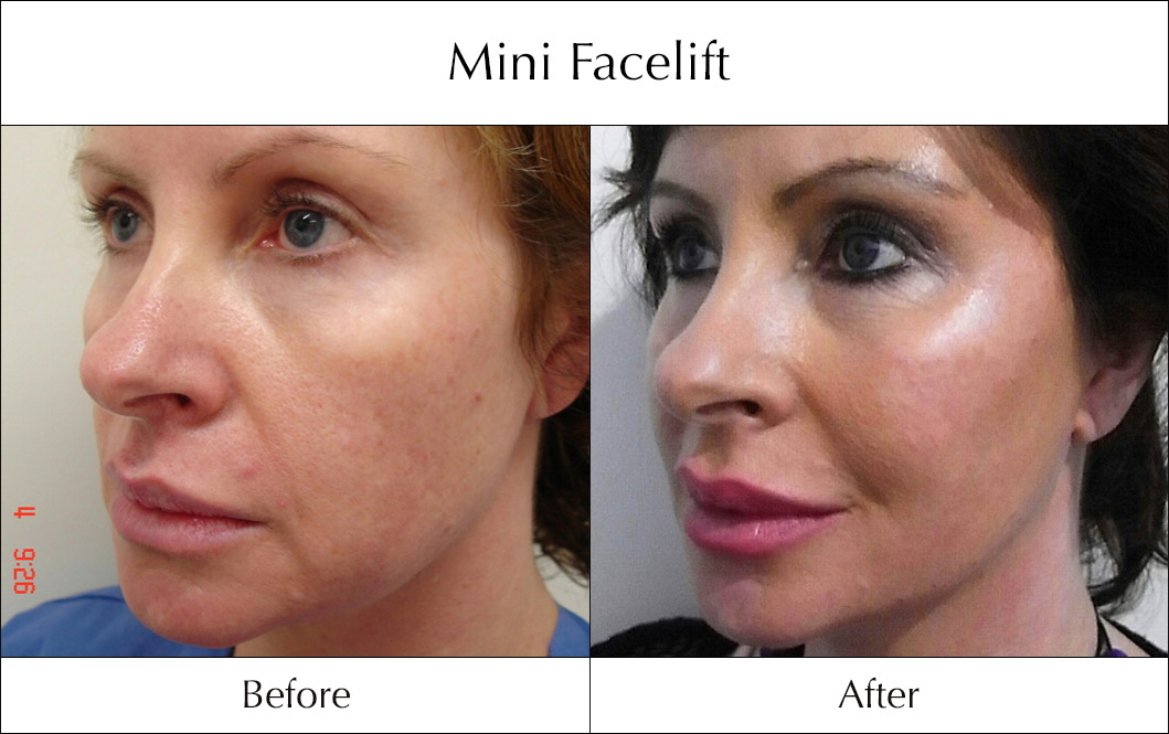 s-lift-mini-facelift-before-and-after-1