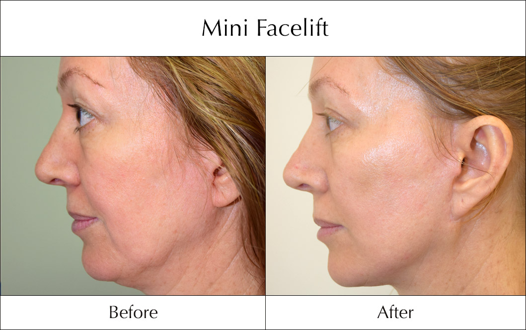 s-lift-mini-facelift-before-and-after-2