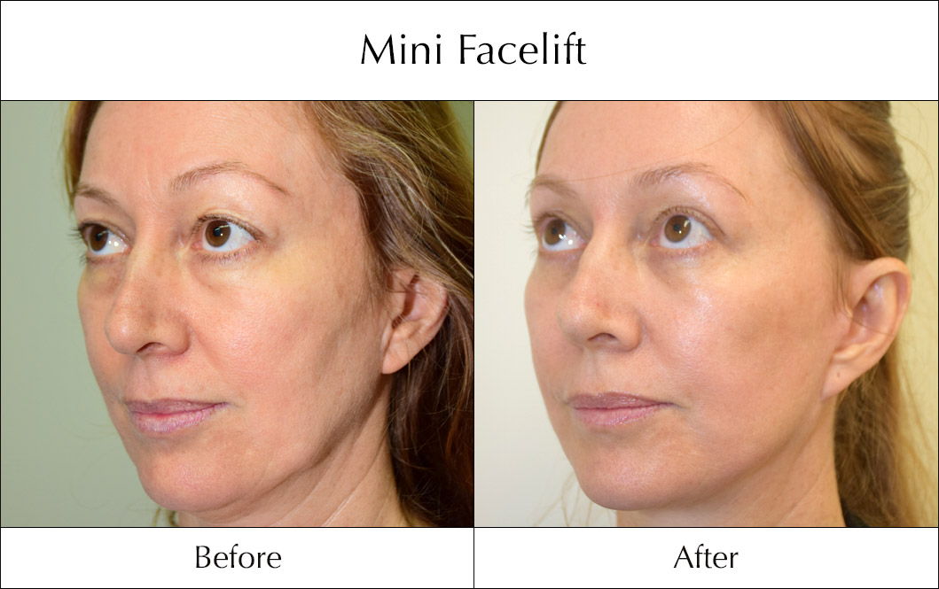 s-lift-mini-facelift-before-and-after-3
