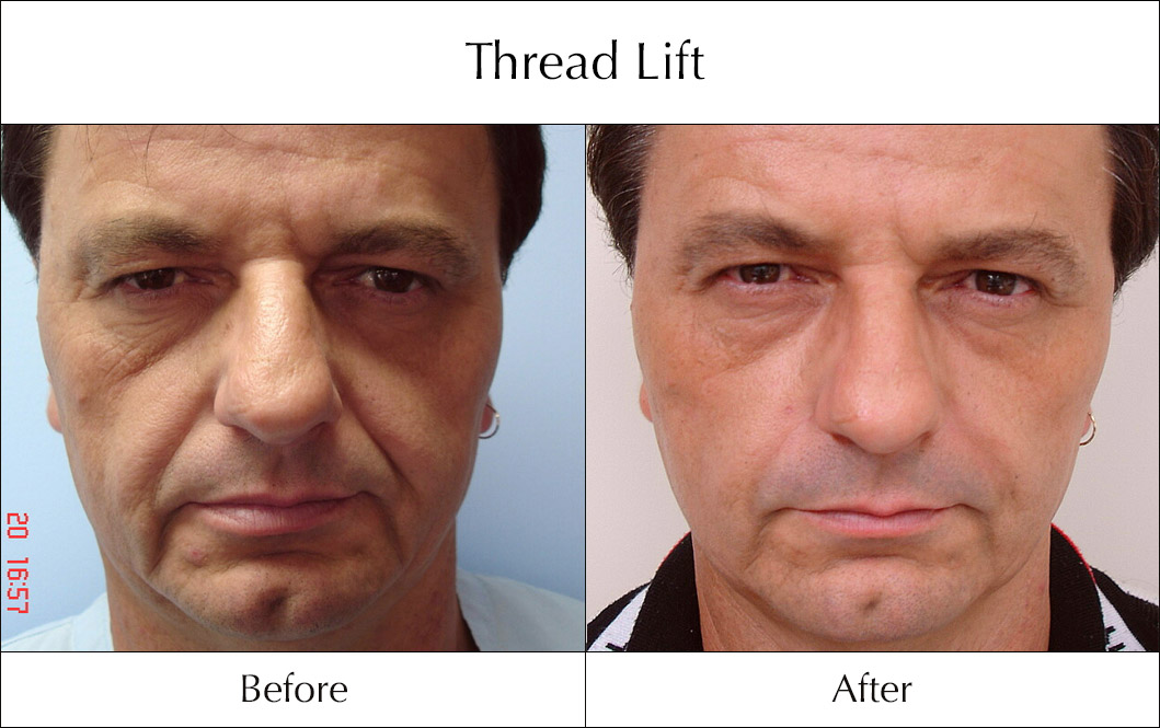 thread-lift-before-and-after-1