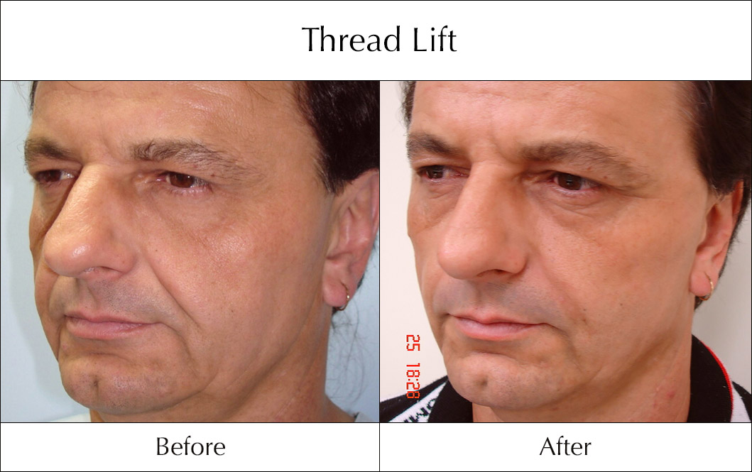 thread-lift-before-and-after-2
