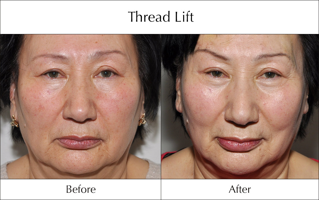 thread-lift-before-and-after-3