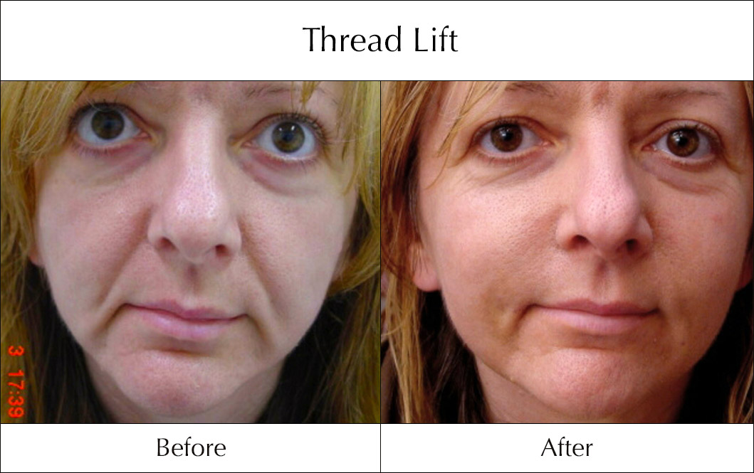 thread-lift-before-and-after-5
