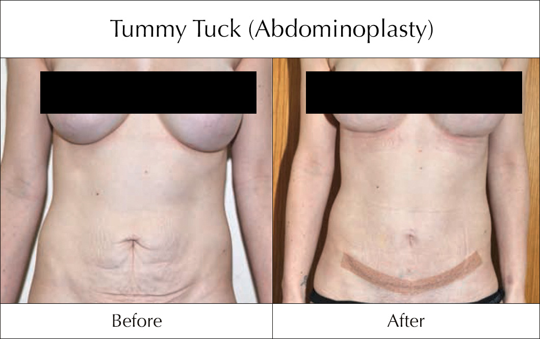 tummy-tuck-abdominoplasty-before-and-after-2