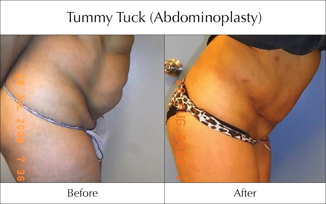 tummy-tuck-abdominoplasty-before-and-after-3