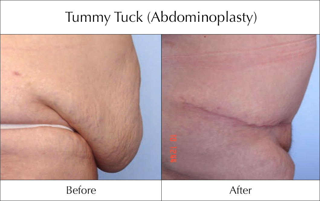 tummy-tuck-abdominoplasty-before-and-after-4 (1)