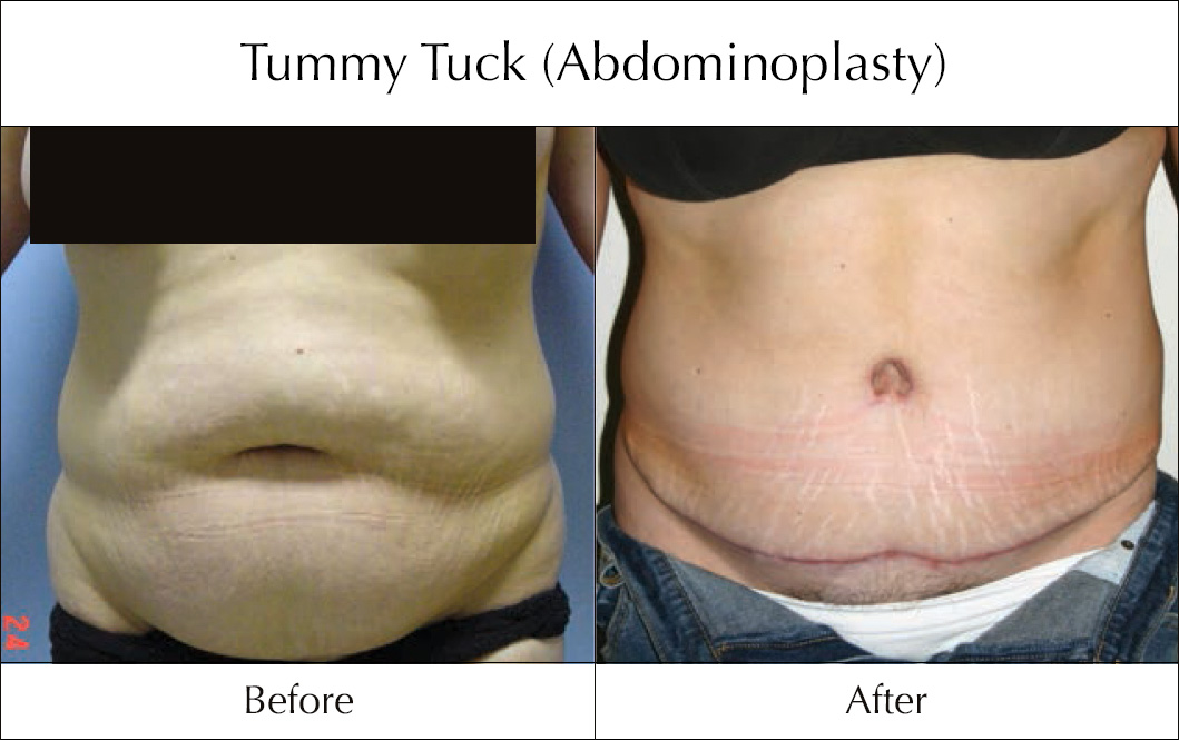 tummy-tuck-abdominoplasty-before-and-after-5