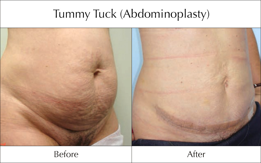 tummy-tuck-abdominoplasty-before-and-after-6