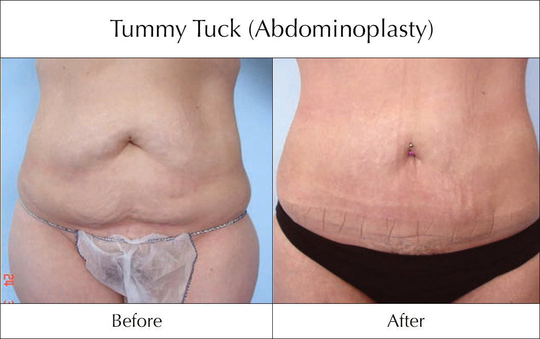 tummy-tuck-abdominoplasty-before-and-after-7
